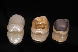 Bridgs And Crowns| Restore Dental Treatment Centre ...